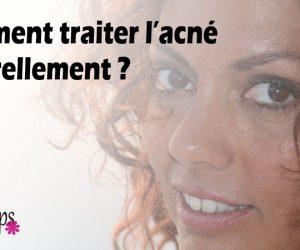 Comment traiter l'acné naturellement ?