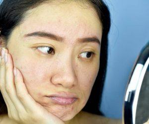 Pores trop larges : comment faire pour avoir une plus jolie peau ?